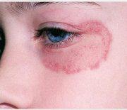 Một số bệnh nấm da thường gặp hiện nay