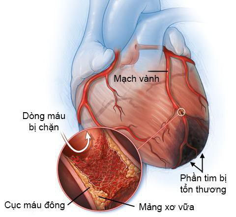 Nguyên nhân, triệu chứng của bệnh mỡ máu cao