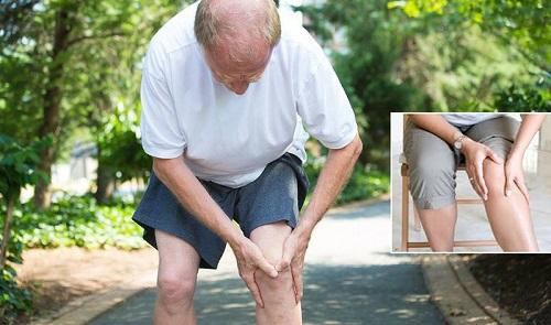 Nguyên nhân, triệu chứng của bệnh thoái hóa khớp gối