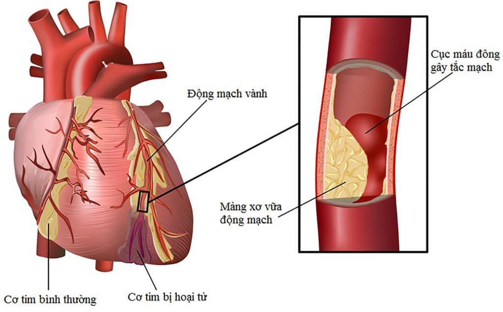 Một số biến chứng nguy hiểm của bệnh tiểu đường type 2