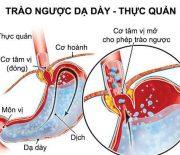Tổng hợp những bệnh thường gặp ở đường tiêu hóa
