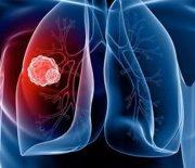 Nguyên nhân, triệu chứng bệnh ung thư phổi