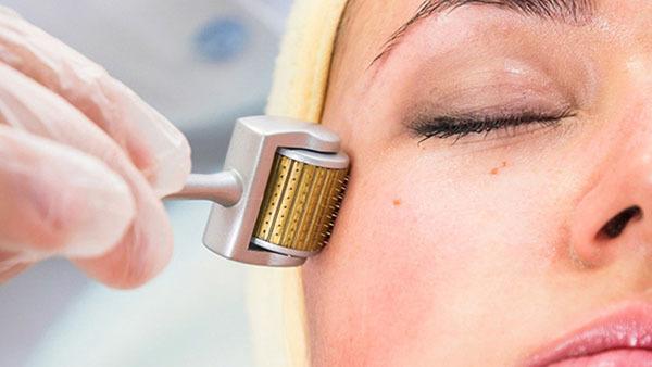 Cách chăm sóc da sau khi lăn kim – không nên bỏ lỡ
