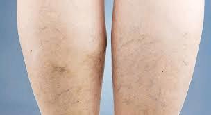 Bắp chân mình sau hơn 1 tháng sử dụng bộ sản phẩm Vascovein