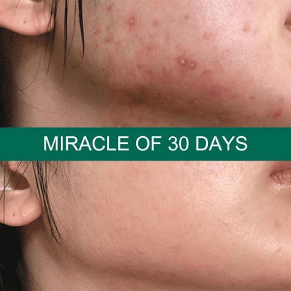 Đây là da mặt của em trước và sau khi sử dụng Kem ngừa mụn Oribe trong thời gian 1 tháng đấy ạ!