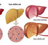 10 Nguy cơ và dấu hiệu quan trọng của bệnh gan