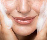 Những điều bạn cần biết về bước rửa mặt sạch cho da bị mụn