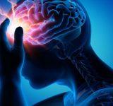Viêm màng não: Nguyên nhân, dấu hiệu và cách chữa trị