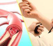 Bệnh cao huyết áp: Nguyên nhân và cách điều trị hiệu quả
