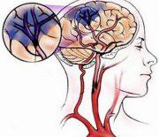 Những dấu hiệu nhận biết bị thiếu máu não